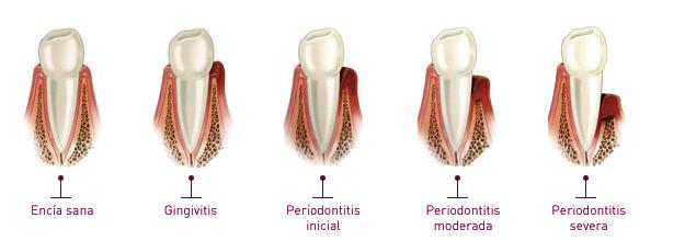 estados-de-periodoncia